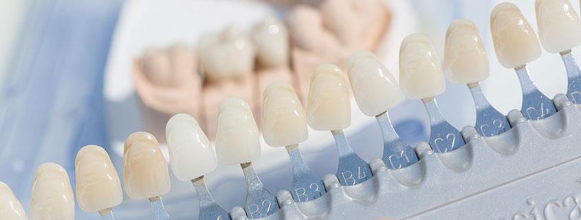dentallabor zahntechnik