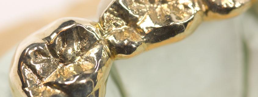 Zahnersatz gold Brücke